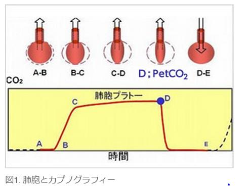 カプノグラフ波形