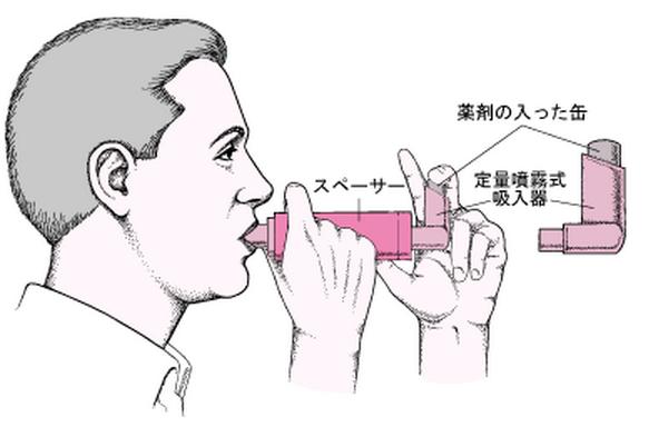 定量噴霧式吸入器