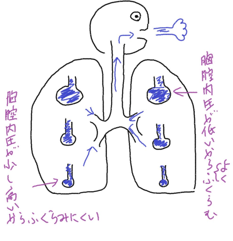 デフォルト杯閾吐胸腔説明