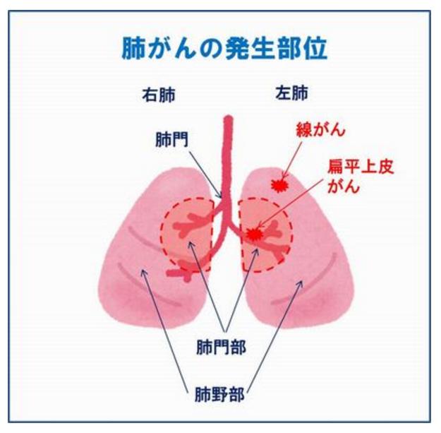 肺がんの発生部位
