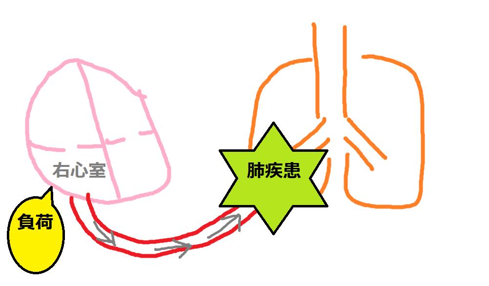 右心室の負荷