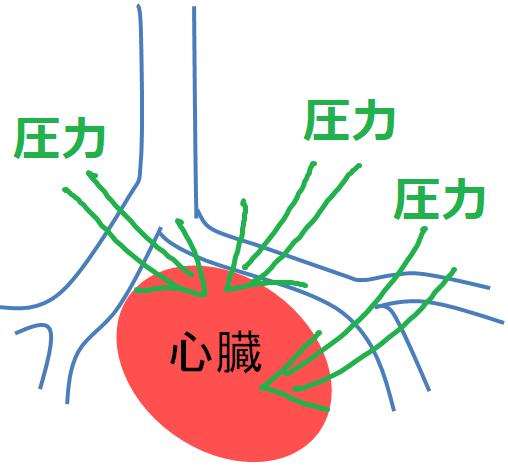 陽圧喚起による心臓の影響の画像