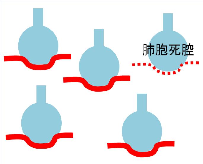 死腔率の説明画像