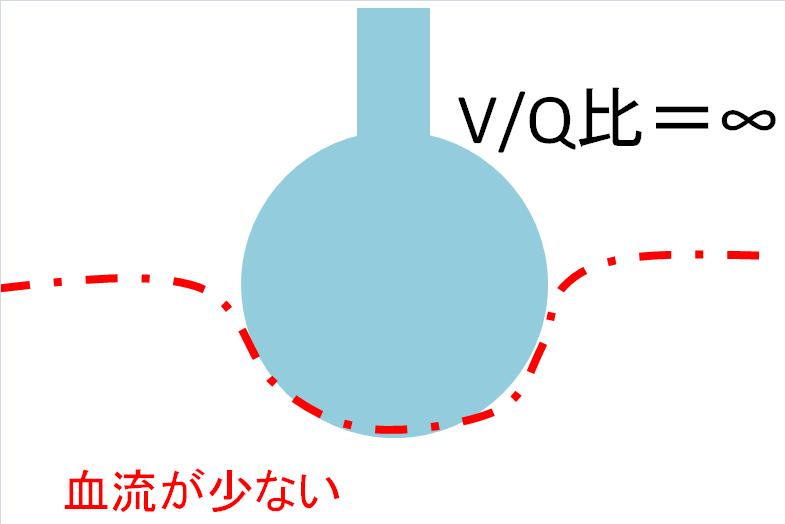 肺胞死腔の画像