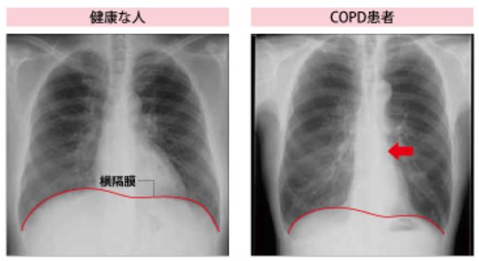 肺気腫の胸部エックス線像