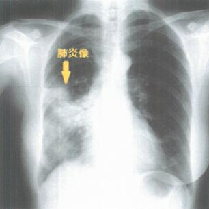 肺炎胸部X線像(中濃厚生病院より)